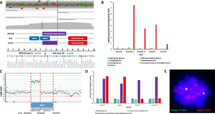 Genomic Characterization of a PPP1CB-ALK Fusion.jpg
