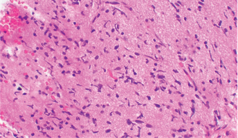Brainstem Glioma.png