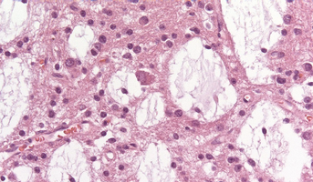 Dysembryoplastic neuroepithelial tumor (DNET).png