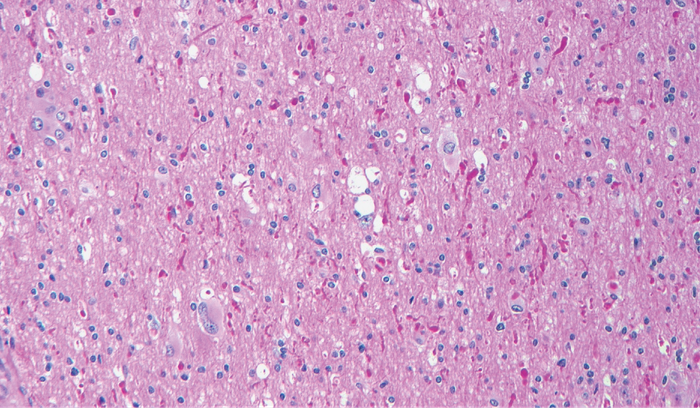 Ganglioma.png