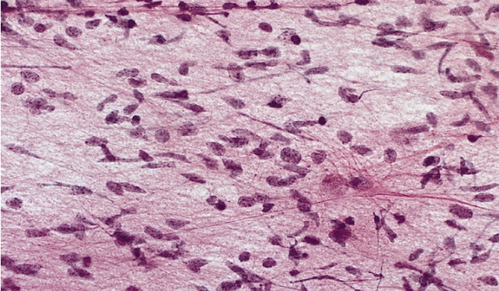 Gliomatosis Cerebri.png