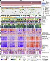 Proteogenomic metabolomiccharacterizationGBM.jpg