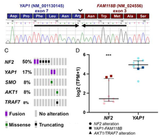 YAP1-FAM118B Fusion Defines a Rare Subset of Childhood and Young Adulthood Meningiomas.PNG
